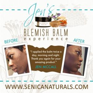 Jen Blemish Balm Review Square Image