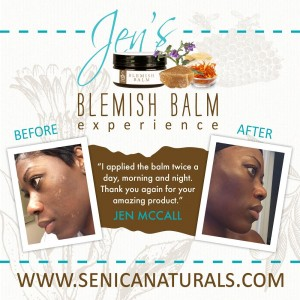 gallery - Jen Blemish Balm Review Square Image