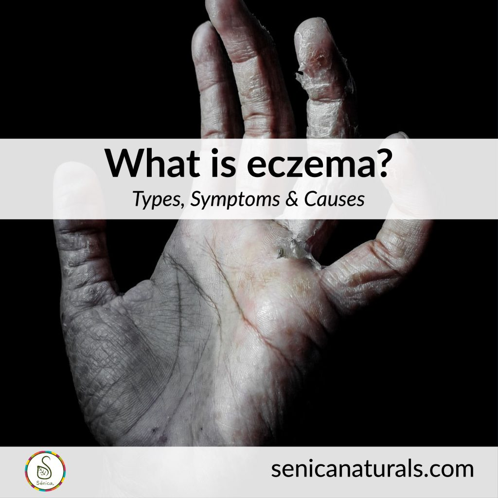 What is eczema? Types, symptoms and causes