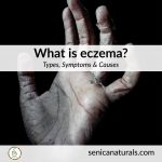 What is eczema square